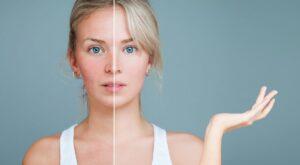 Cómo combatir los síntomas de la rosácea con remedios naturales.